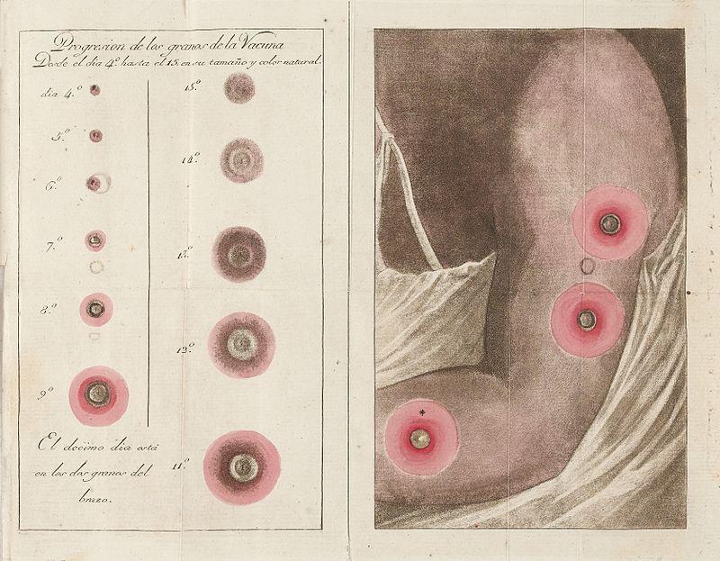 Casos de varíola en Cíes e lepra en Ons